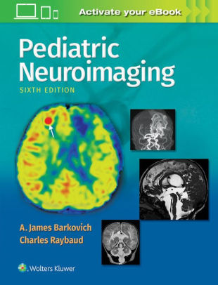mic barkovich pediatric neuroimagingwith website6e18 fandeluxe Choice Image